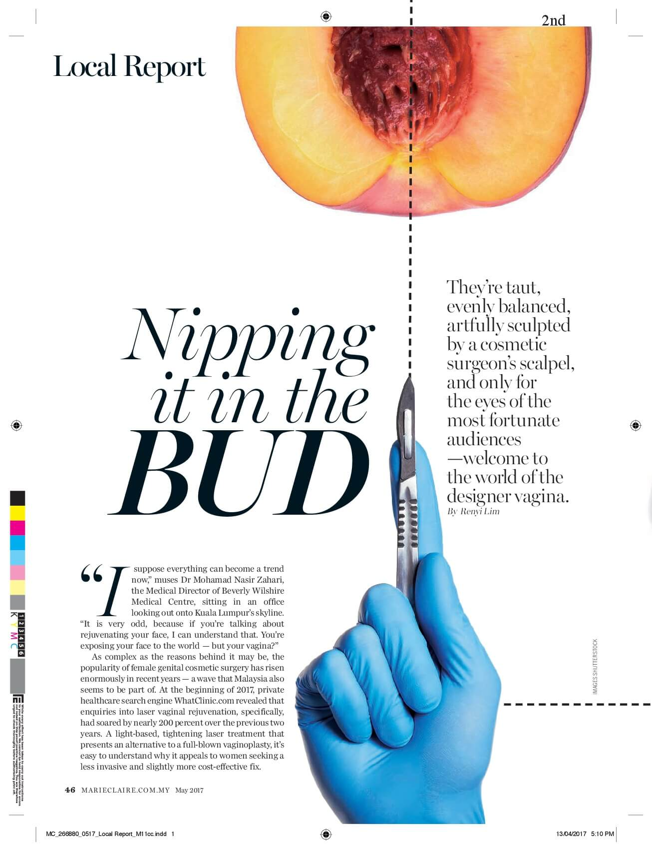 Nipping it in the BUD – By RenYi Lim