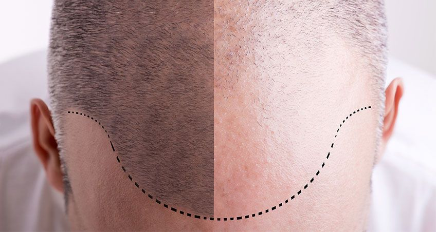 Why Men Are Going Bald Younger