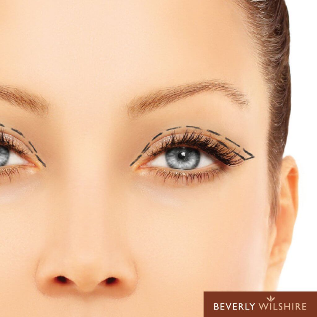 6 Things You Should Know Before Getting Double Eyelid Surgery