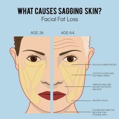 Facelift: Take The Years Away