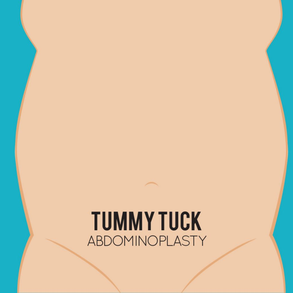 Tummy Tuck: Get Rid Of Spare Tire